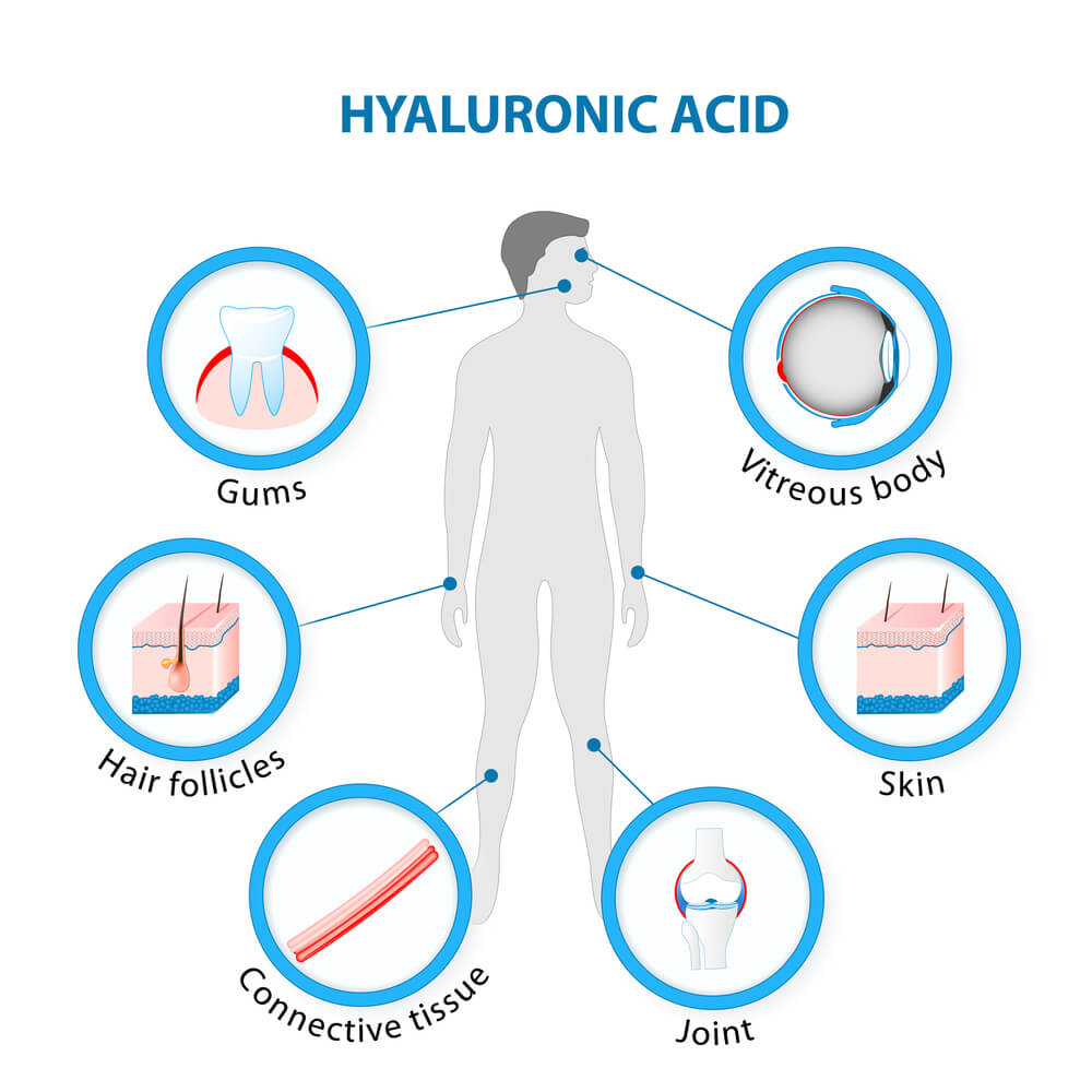 Acid hialuronic 1